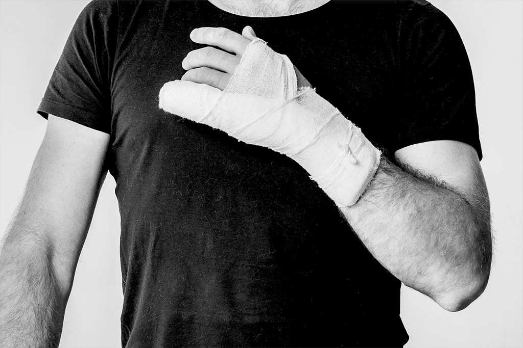 Injured worker with sprained hand in bandages